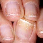 Что делать если ногти слоятся и ломаются – Почему ломаются и слоятся ногти: причины и лечение. Что делать, если слоятся ногти на руках и ногах в домашних условиях
