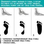 Как можно предупредить плоскостопие – Как избежать плоскостопия? предотвратить развитие патологии у детей и взрослых?